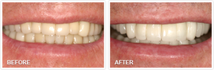 B&A-Teeth Whitening